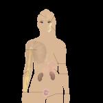 繊維筋痛症